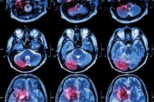 Breakthrough in Brain Imaging