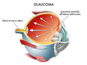 Lasers Treat Glaucoma Patients