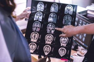 Neuroimaging And Alzheimer's